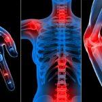 روماتیسم مفصلی و راهکارهای تغذیهای برای درمان آن