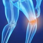 7 نکته درباره پوکی استخوان که شاید تا به حال نشنیدهاید