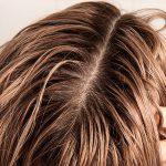 برای کاهش چربی مو از چه ماسکی استفاده کنیم؟