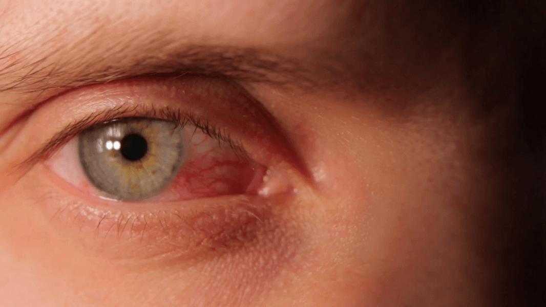راههای درمان قرمزی و ورم چشم و آلرژیهای مربوط به چشم